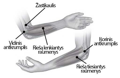 jei jūsų rankos skauda alkūnės sąnarių artritas pirštai kaip pašalinti skausmą