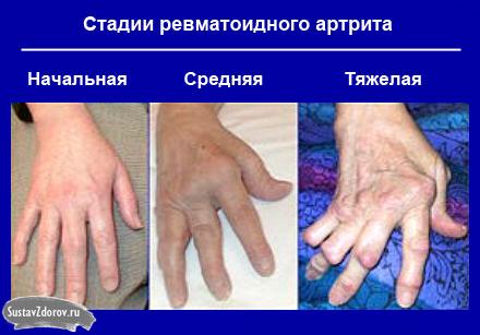 reumatinės sąnarių skausmas nei pašalinti