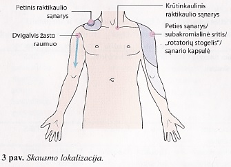 pašalinti skausmą pečių sąnarių