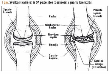 agentas osteoartrito peties sąnario gydymo osteoartritas mažų sąnarių liaudies gynimo priemones