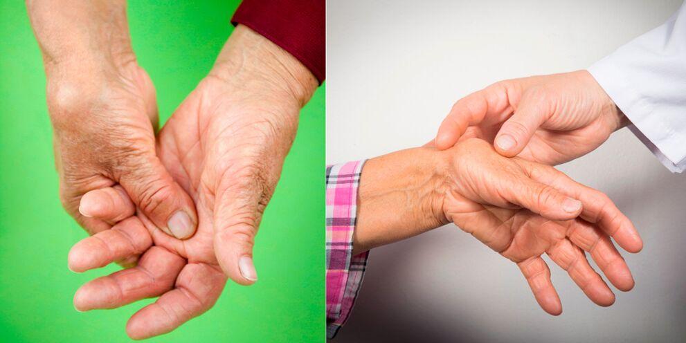 ką sąnariai skauda išlaikyti skausmą kai plėtinys