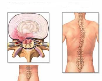 nuo sąnarių skausmo radikulitas kaip artrozė pažeidžia sąnarius