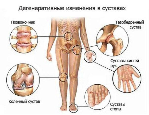 pakuotės tabletes su bendrų skausmai artrozės