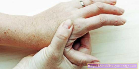patinimas piršto sąnarių priežastis swelling in joints of foot
