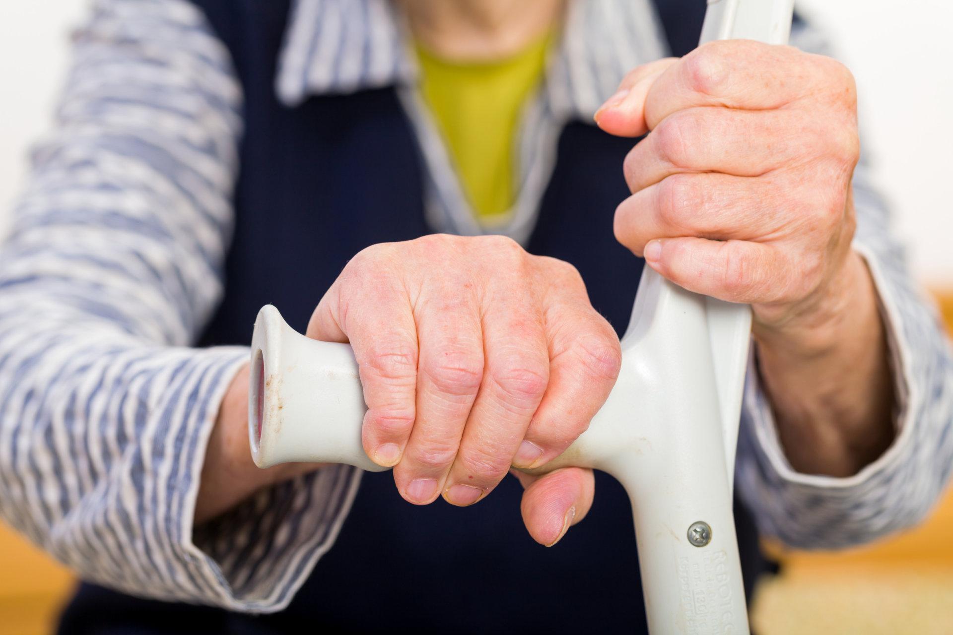 podagros artritas rankos artrito facetic sustaines