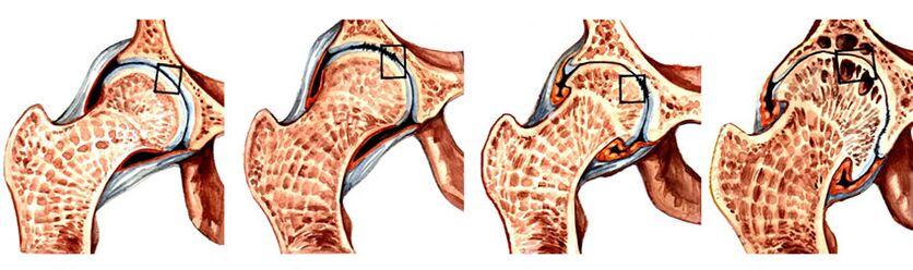 kaip pašalinti sąnarių uždegimas artritas liaudies gynimo kelio sanario sausgysliu uzdegimas