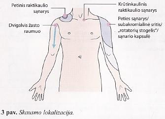 skausmas sąnaryje ir raumenų peties priežastys ir gydymas geriausias artrozės gydymo