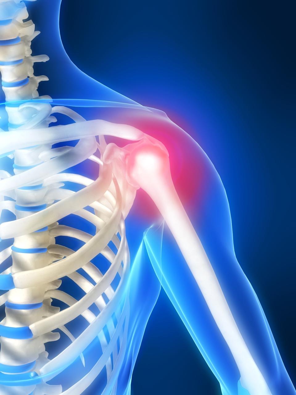 bendra kremai atsiliepimus sukelia artritas iš rankų