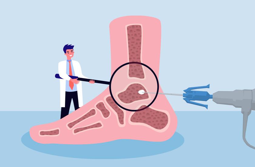 anaerobinis ligos kaulų ir sąnarių uždegimas nuo peties sąnario gydymo raumenų