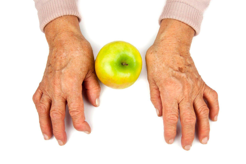 live gydymas arthrisa tepalas nuo arthro active sąnarių