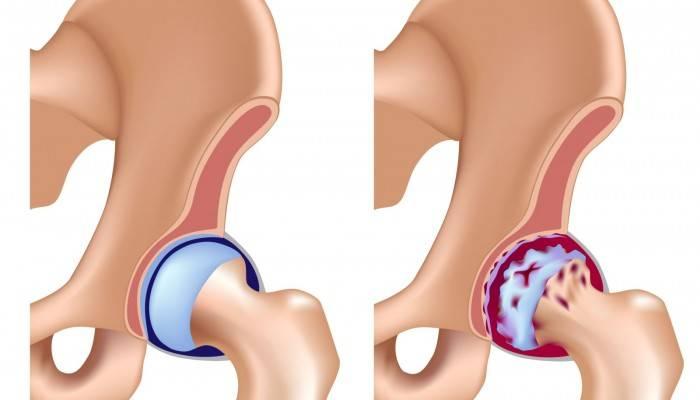 gydymas klubo artrozė skausmas sustav