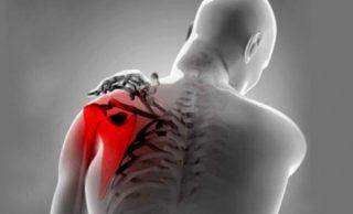 felion alkūnės sąnarių ligomis lėtinio skausmo sąnarių