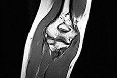 gydymas osteochondrozė žolelių artrosis