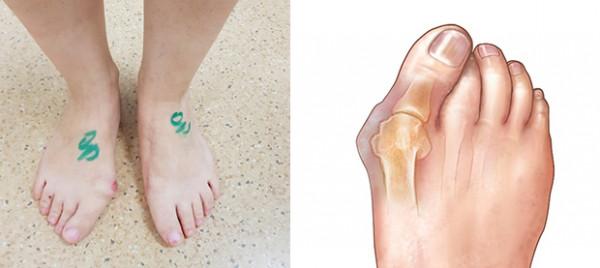 ligos triušių sąnarių reumatoidinis artritas kaip isvengti