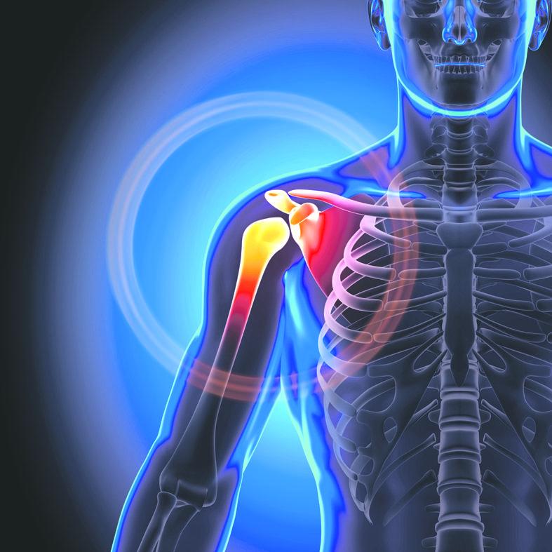 sukelti skausmo pečių ir alkūnių sąnarių gydymo kremas sąnarių po sužeidimo
