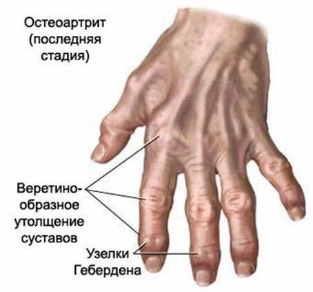 polyarthrosis sąnarių liga