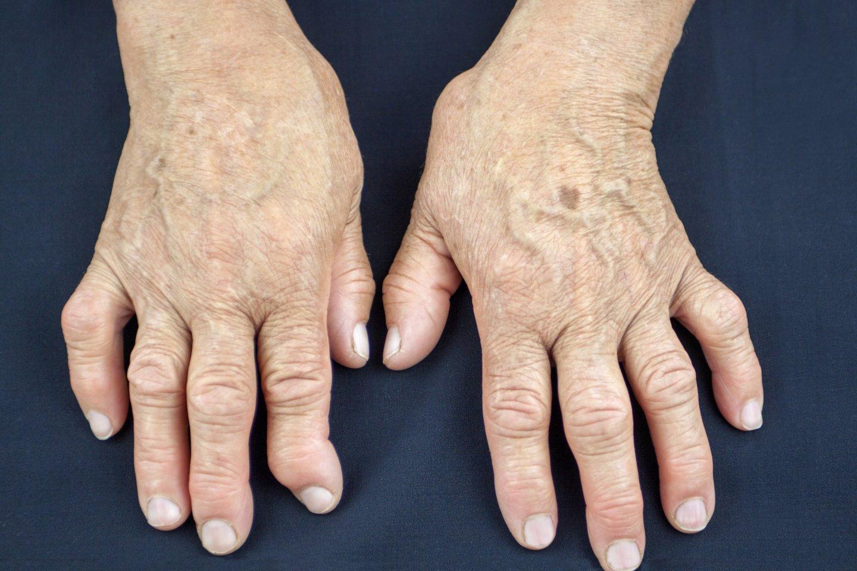 infekcinės ligos sąnarių kaulų artritas ir tirpimą kairės rankos