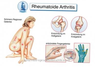 artrito argroza gydymas tempimo raiščių bendra