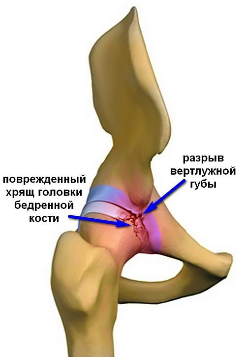 problemos su alkūnės sąnario ūmaus artrito alkūnės sąnario gydymo