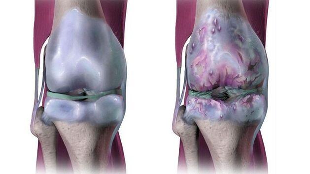artritas nutirpęs pirštai ligos nuo rankų sąnarių į rankas