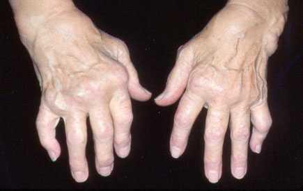 tai kas yra reumatoidinis artritas sąnarių kremas su sąnarių skausmas