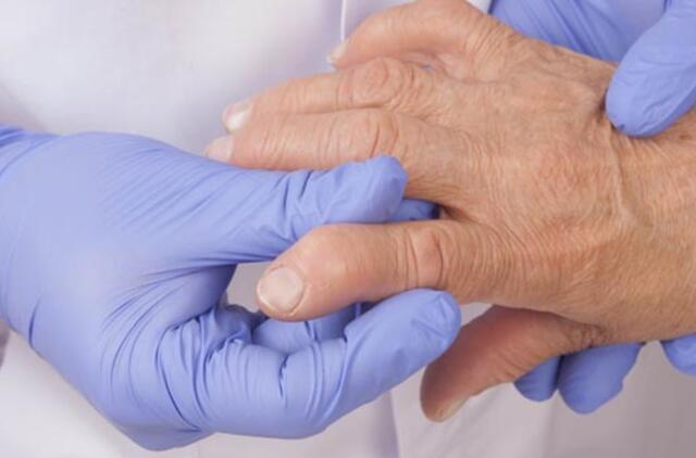 iš sąnarių ligų ar sąnarius nuo ok