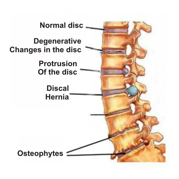 iš už sąnarių sustingimas kai sąnariai ir raumenys skauda