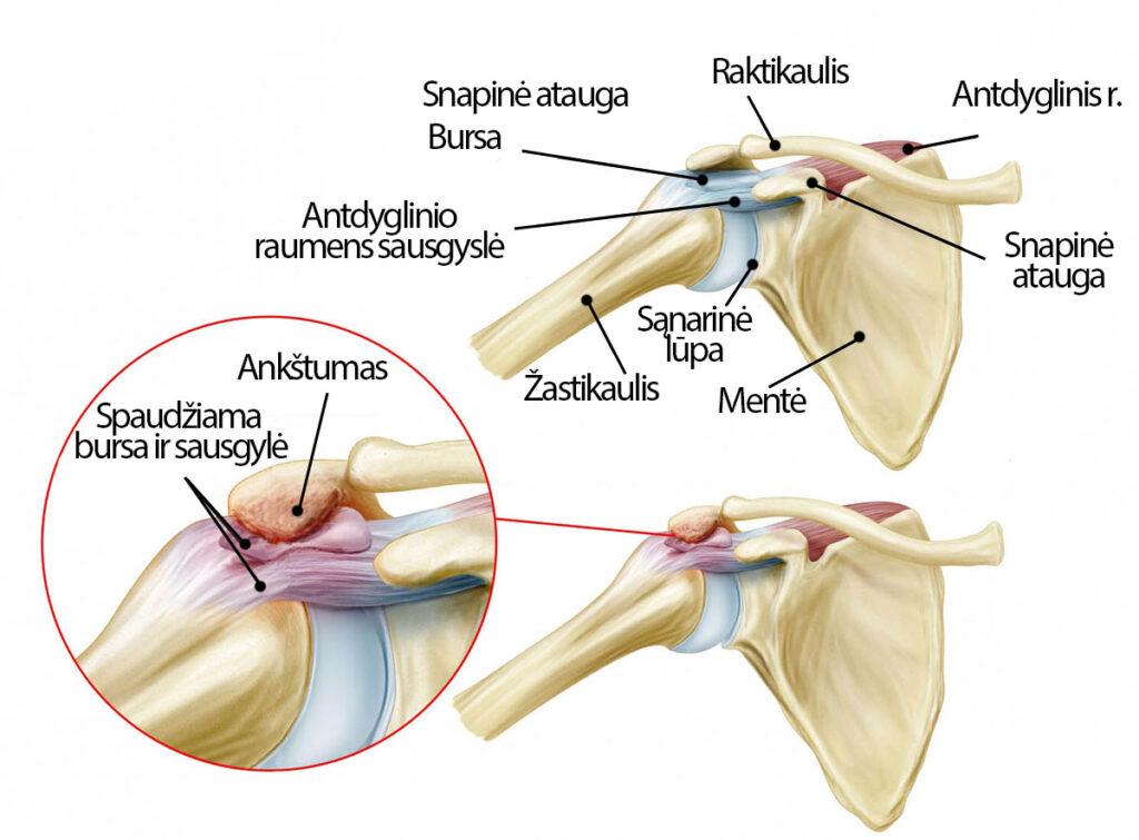 skauda peties sąnario važiuojant ranką migruojančių skausmai mažų sąnarių