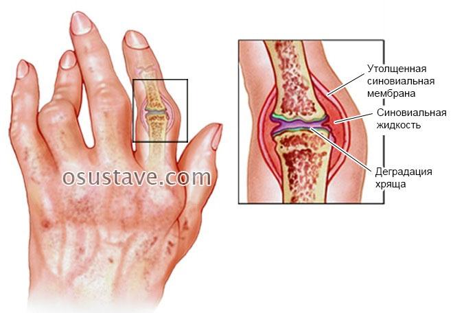 ispanija gydymas sąnarių mazi raumenų sąnarių skausmas