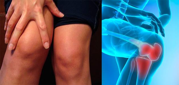 nardnye reiškia sąnarių artrozė 1-2 st pečių palaikimo