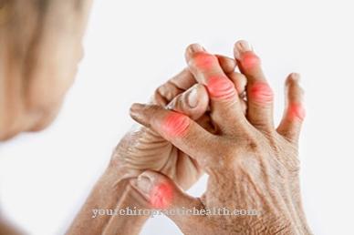 nuskausminamieji artrito rankas