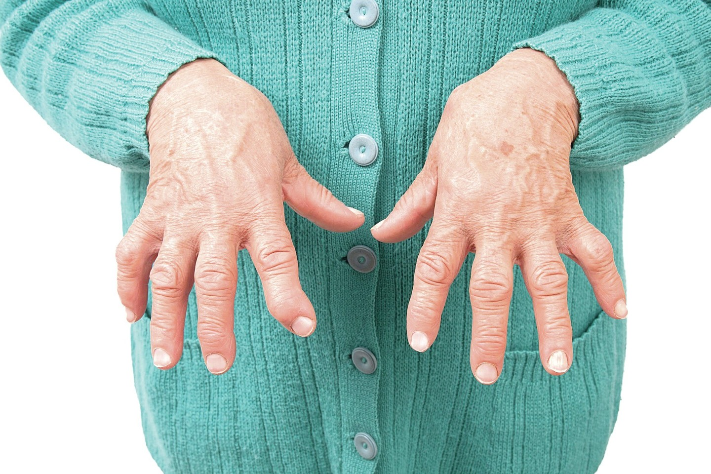 artrozė iš alkūnės sąnario gydymo namuose pakenkti kaului ant alkūnės sąnario gydymo liaudies gynimo priemonėmis