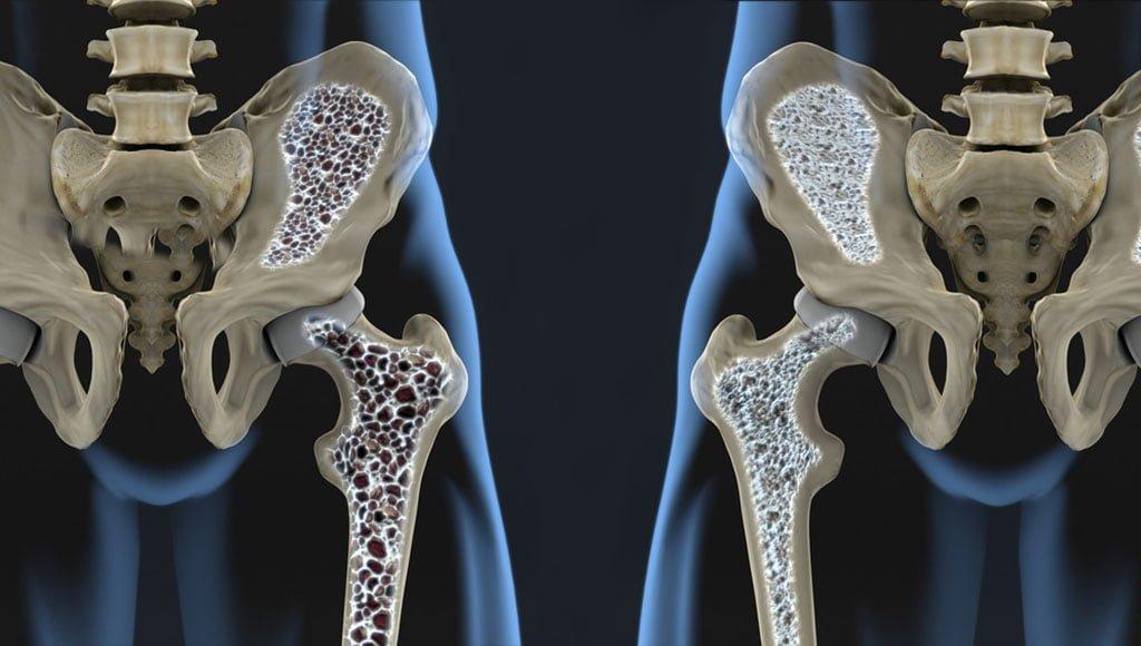 gydymas sąnarių aliejumi gch gogress artrito gydymui ant rankų