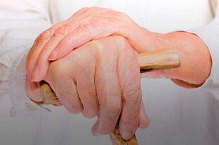 mazi nuo iš rankų sąnarių skausmus