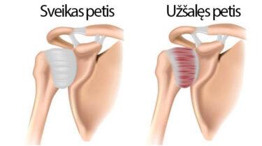 vėjaraupiais sąnarių skausmas gydymas artrozė pirštais liaudies gynimo priemones