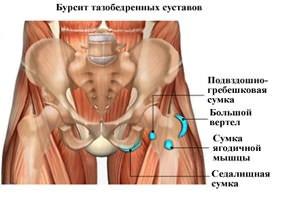kaip pašalinti sąnarių ir raumenų uždegimą sąnarių skausmas kad išvykimas