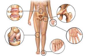vienodai sulyginti artrozės