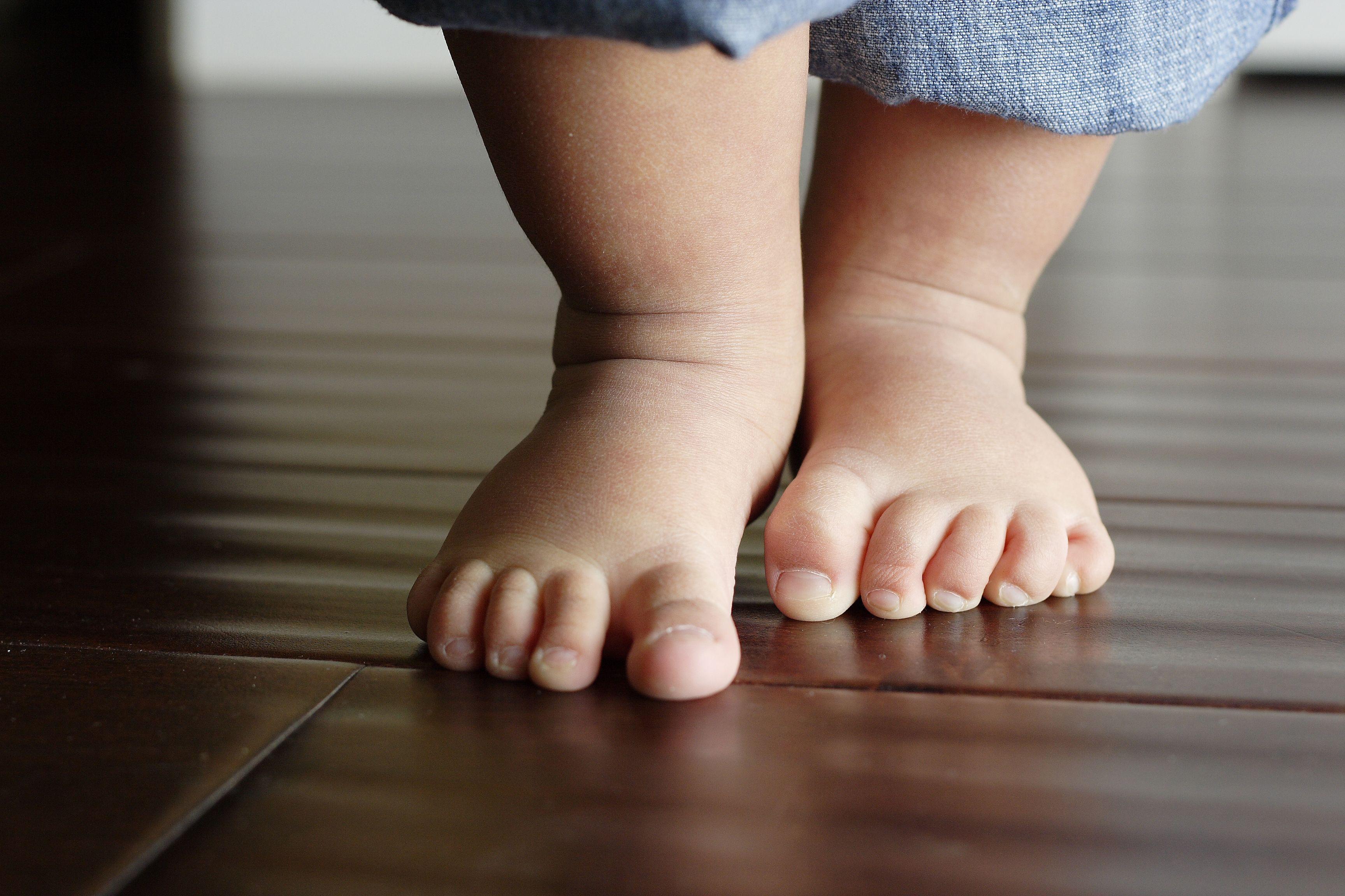 kūgis ant pėdų gydymui sąnarių krutines skausmas