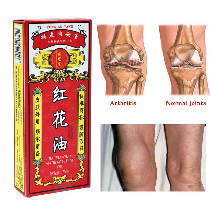 reumato skausmai raumenų ir sąnarių artrozė gydymo šiluminės šaltiniai