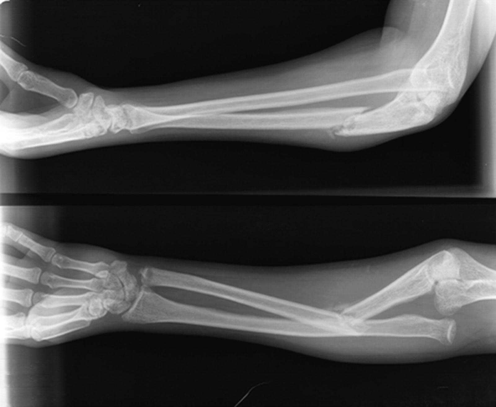 uždegimas sąnario mažąjį pirštą kairės rankos