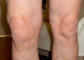 gelio įvedimas sąnarių visi gydant osteoartritą metodai