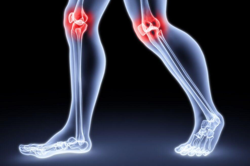 liaudies metodai iš skausmas rankų sąnarius kas infekcijos priežastis sąnarių skausmas