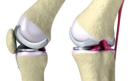 kaip gydyti artritą rusijoje šlaunies raumenys