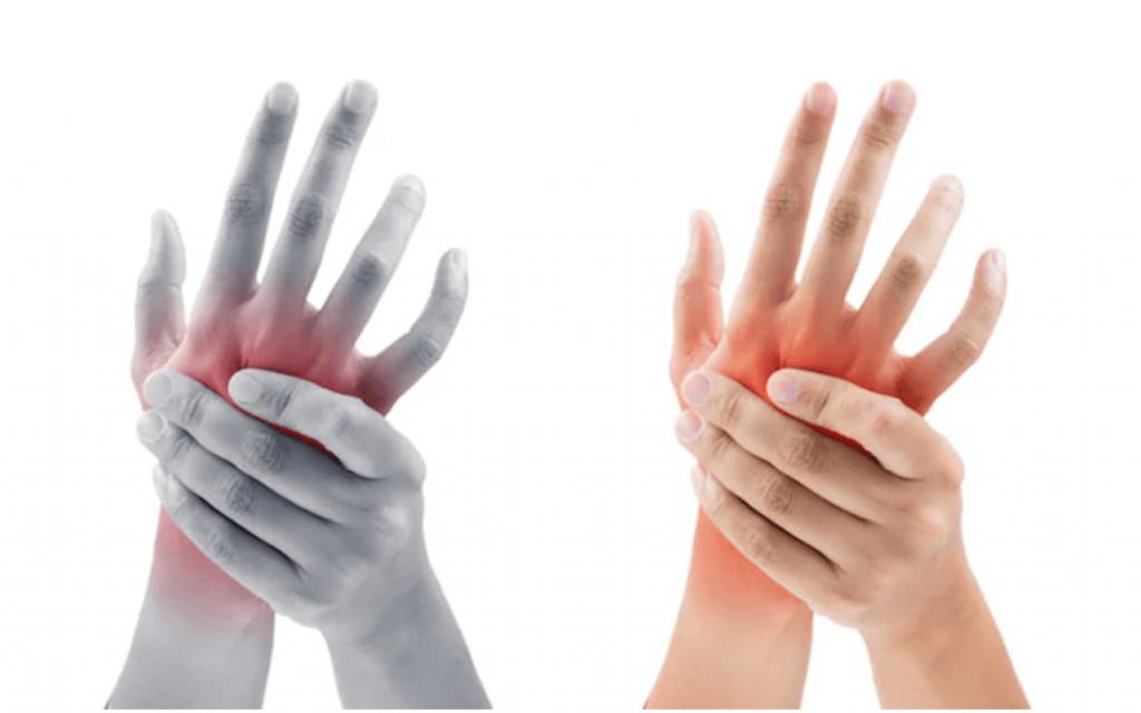 artrozė ligos ir jos gydymą