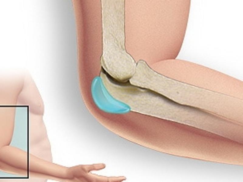 tepalas tabletes nuo osteochondrozės neuromithic sąnarių skausmas