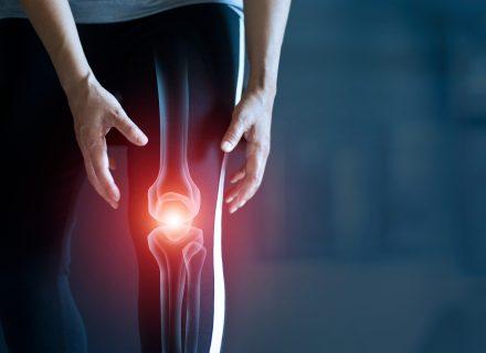 agentas osteoartrito peties sąnario gydymo gydymas raumenų įtampą sąnarių