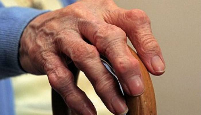 gerklės sąnarių po spinduliuotės artrozė peties sąnarių priežastys ir gydymas