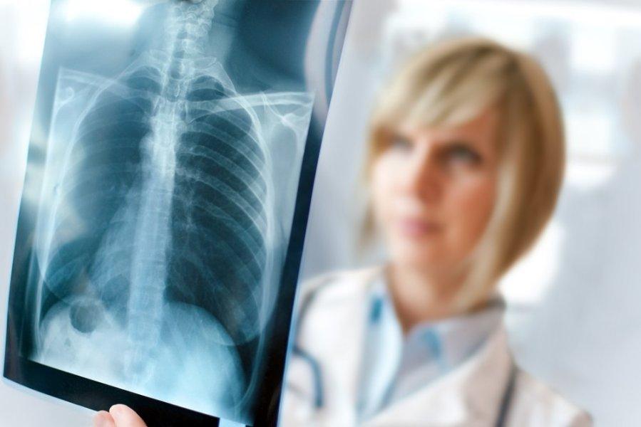 pneumonija ir sąnarių skausmai