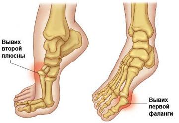 gydymas artrozės krašto