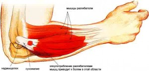 liga iš alkūnės sąnarių ar sąnariai skauda ureaplasma